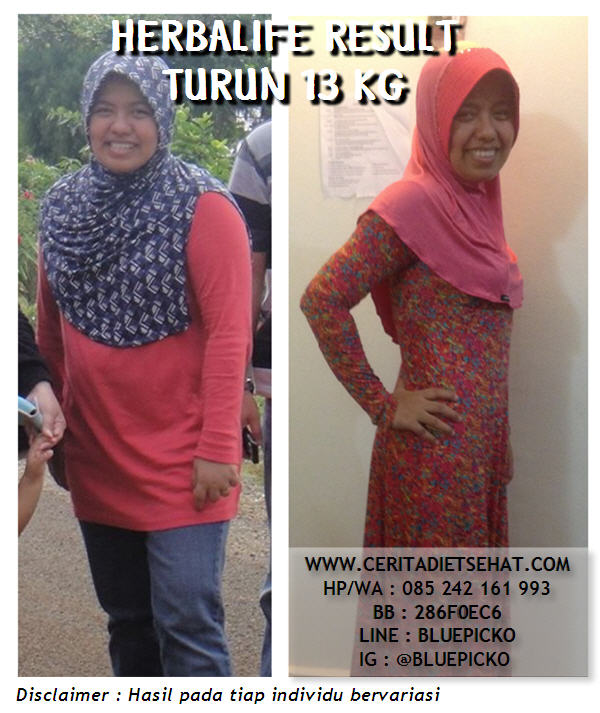 Before After Herbalife 01